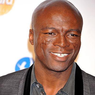 Seal (musician) Neiman Dermatology and Hair Transplantation Singer Seal39s