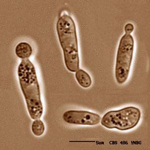 Sporobolomyces genomejgidoegovSporo1sporobolomycesroseusjpg