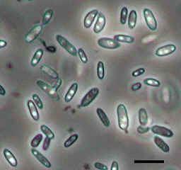 Sporobolomyces Micrographs