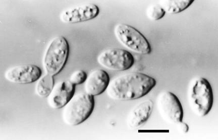 Sporobolomyces Basidiomycota gtgt Basidiomycetes gtgt Sporidiales gtgt Sporobolomyces roseus