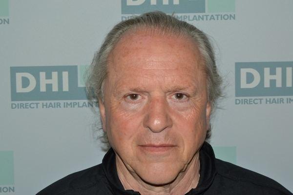 Steve Giatzoglou Basketball legend Steve Giatzoglou had a DHI hair transplant DHI
