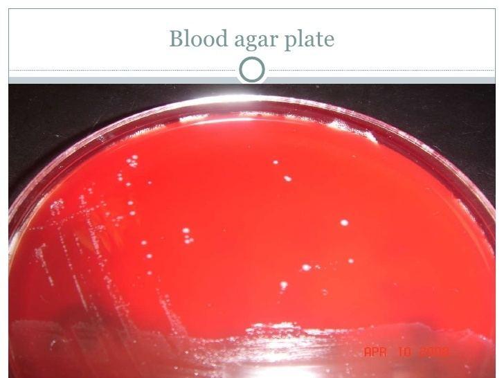 Streptococcus salivarius Strep Salivarius