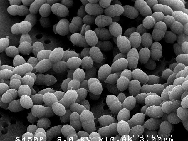 gambar bakteri Streptococcus Thermophilus