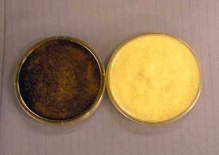 Streptomyces nodosus Rhinocerebral Mucormycosis