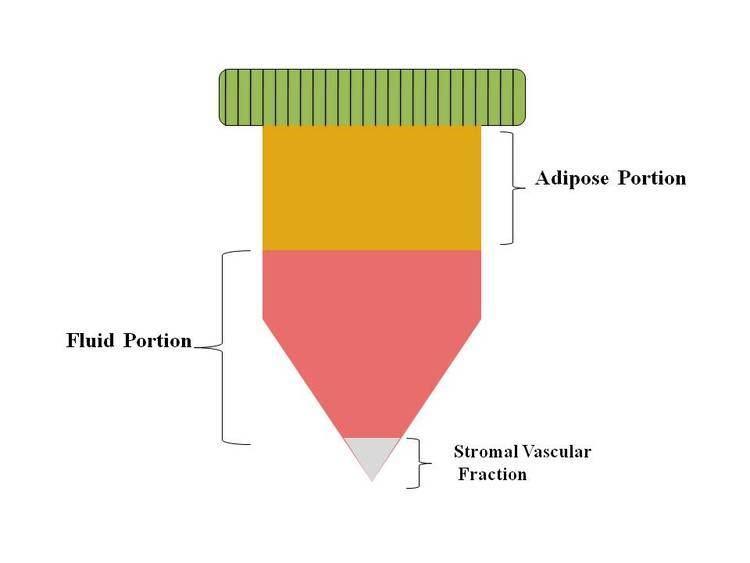 Stromal vascular fraction