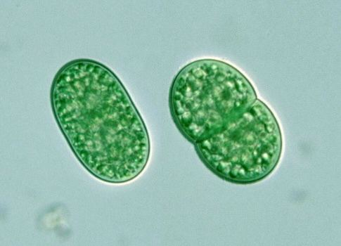 Synechococcus under a microscope.
