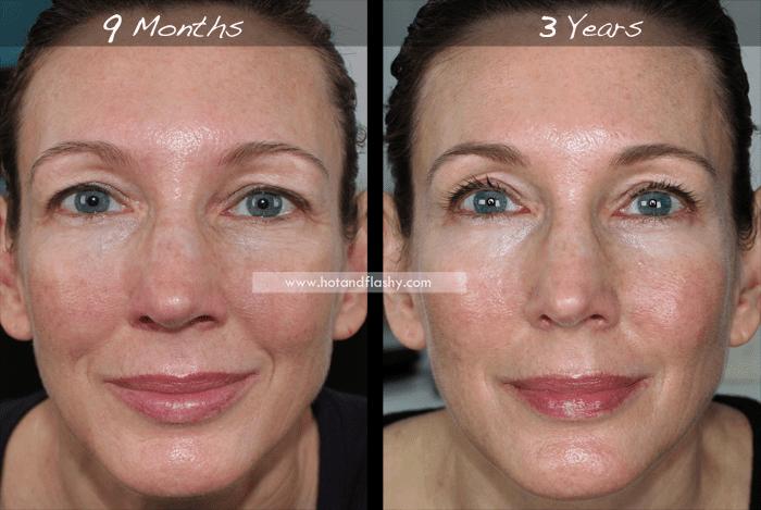 Третиноин фото до и после применения