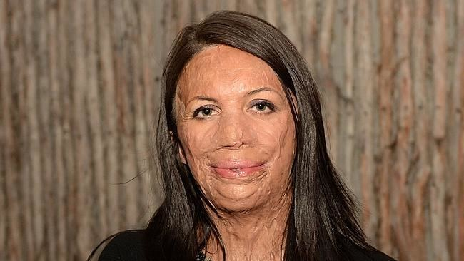 Turia Pitt Turia Pitt posts picture of rescuer hours after winning