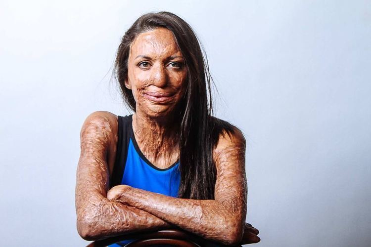 Turia Pitt Burns survivor Turia Pitt fundraises for charity and says