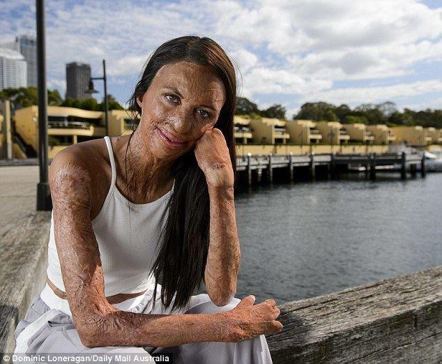 Turia Pitt Burn survivor Turia Pitt meets Laos boy SHE calls a hero