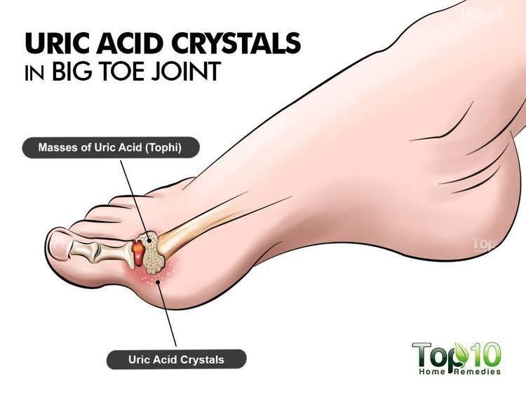 Uric acid wwwtop10homeremediescomwpcontentuploads2015