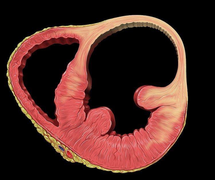 Ventricular aneurysm