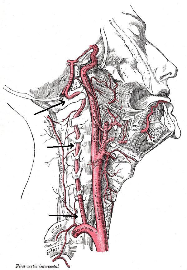 Vertebral artery dissection