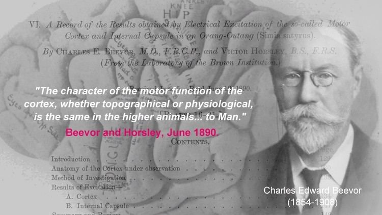 Victor Horsley Sir Victor Horsley 18571916 A Heart of Gold YouTube