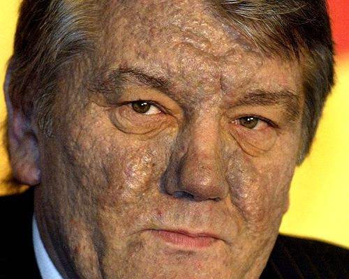 Viktor Yushchenko Bostoncom News Special reports 2004 Year in Review
