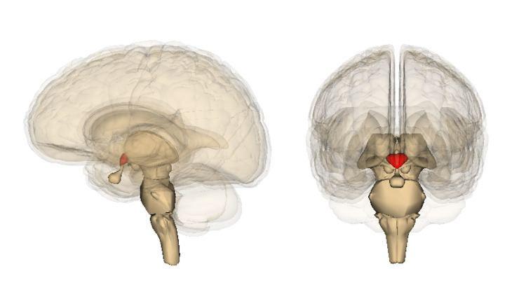 Wernicke's encephalopathy